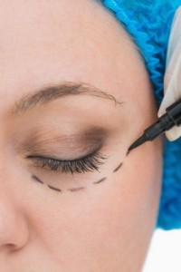 Types of Eyelid Surgery Incisions | Associates in Plastic Surgery