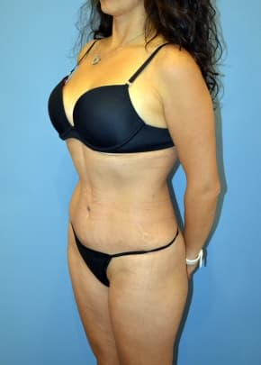 Tummy Tuck NJ